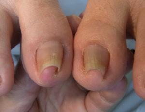 埼玉巻き爪矯正院川口院重度の巻き爪患者写真
